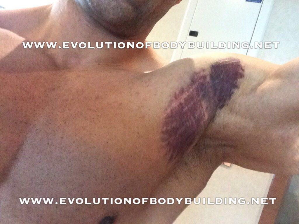 kevin-levrone-injury1