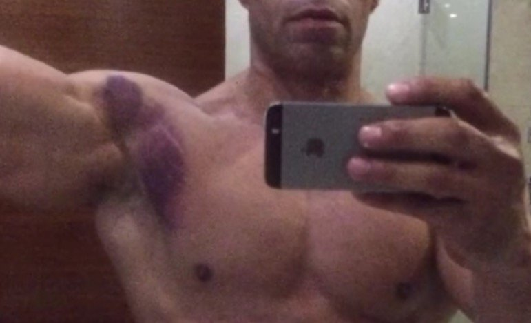 levrone-injury-2
