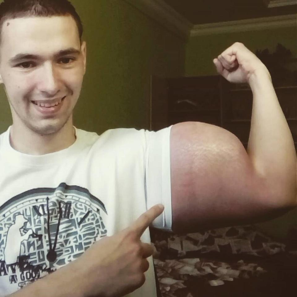 Synthol equals possible death