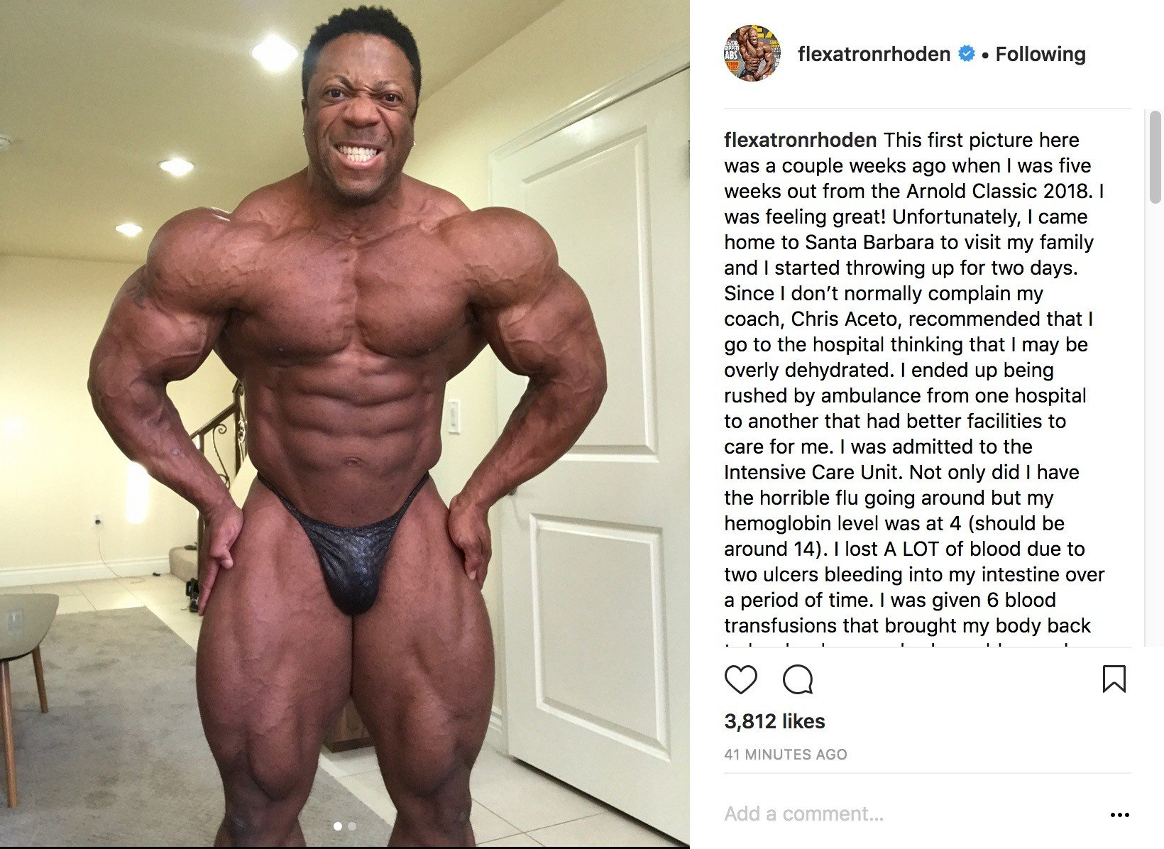 CONFIRMED: Shawn Rhoden is out of the 2018 Arnold Classic