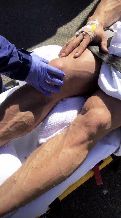 WATCH: Calum Von Moger injures knee while climbing down cliff