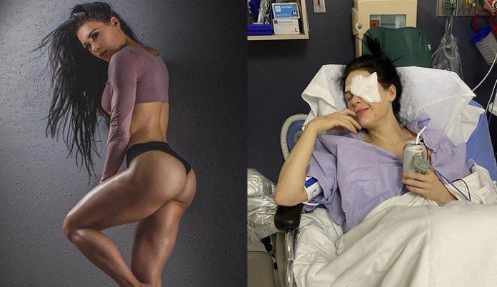 Bikini Olympia winner Ashley Kaltwasser eye surgery